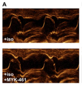 image with two panels comparing obstructed and clear pathways for blood flow